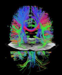 brainscan wiring