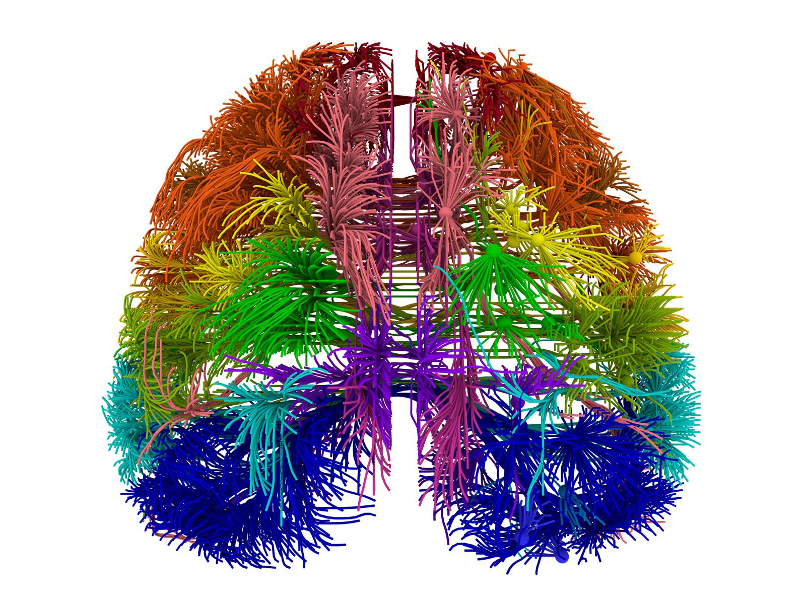A brain scan which shows the connections between areas of the brain