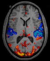 A brain scan showing the areas of the brain that are active at the time of the scan